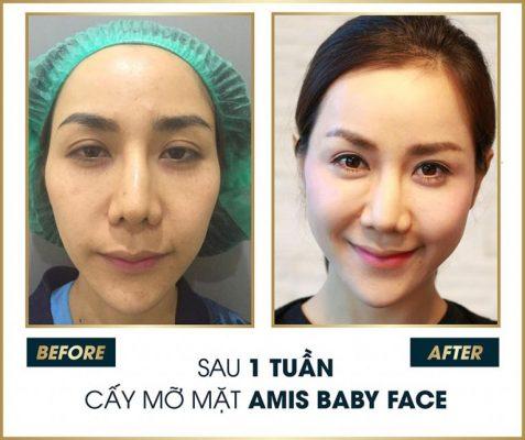cấy mỡ mặt là gì?