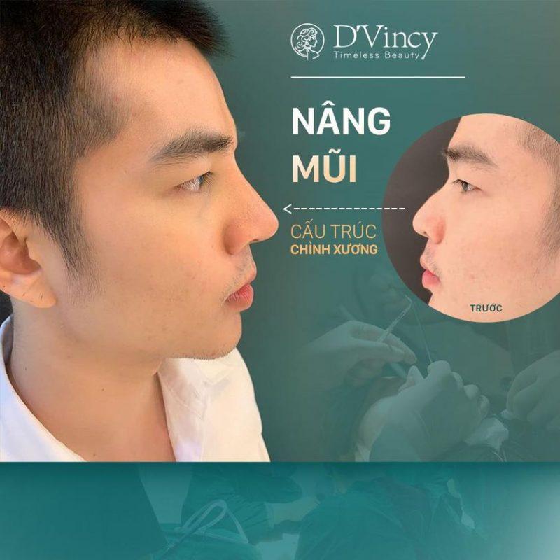 vien-tham-my-dvincy-nang-mu-cho-nam-gioi-khac-nu-gioi