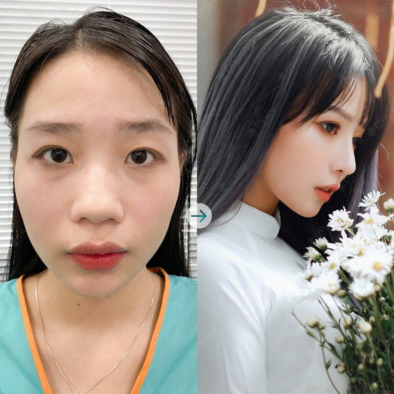 Vien-tham-my-dvicny-co-tot-khong