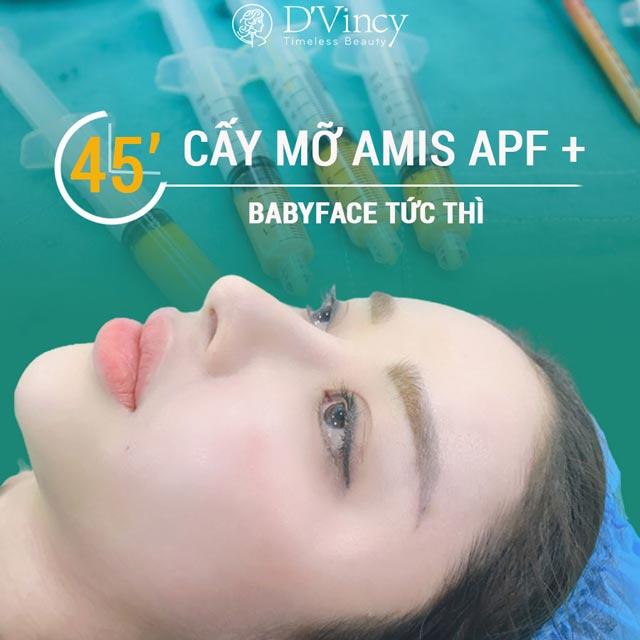 cay-mo-ma-dvincy