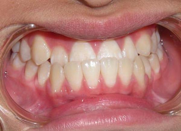 Viện-thẩm-mỹ-dvincy-răng-móm