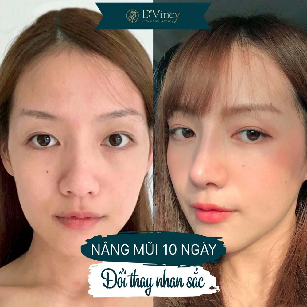 vien-tham-my-Dvincy-nang-mui-nhan-trac-hoc-cong-nghe-amis-doc-quyen-dvincy