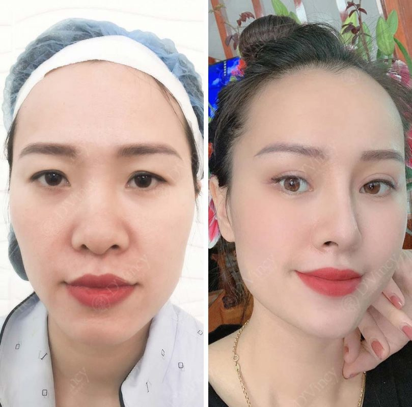 Vien-tham-my-dvincy-nang-mui-sun-boc-co-vinh-vien-khong