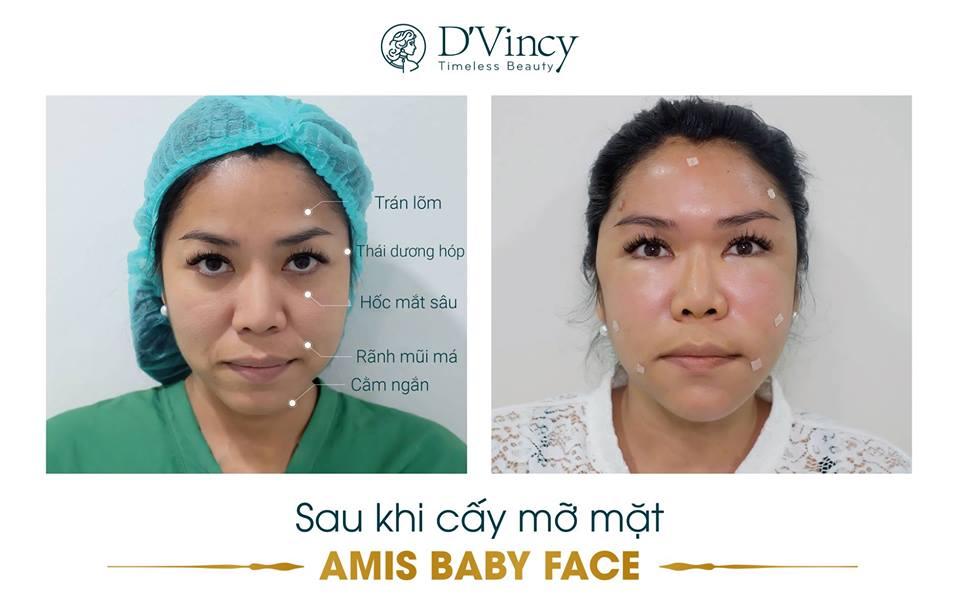 vien-tham-my-dvincy-cay-mo-mat-tu-than-amis-baby-face-lam-day-nep-nhan